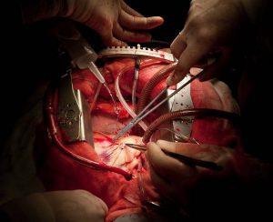 جراحی سپتال میکتومی