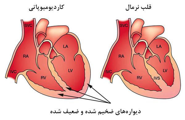 کاردیومیوپاتی یا بیماری ماهیچه قلب چیست