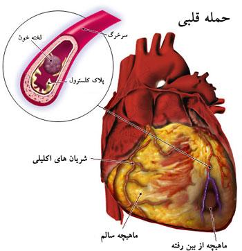 سپتال میکتومی جراحی عمل باز قلب