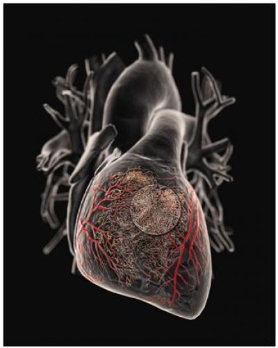 انسداد شریان قلب