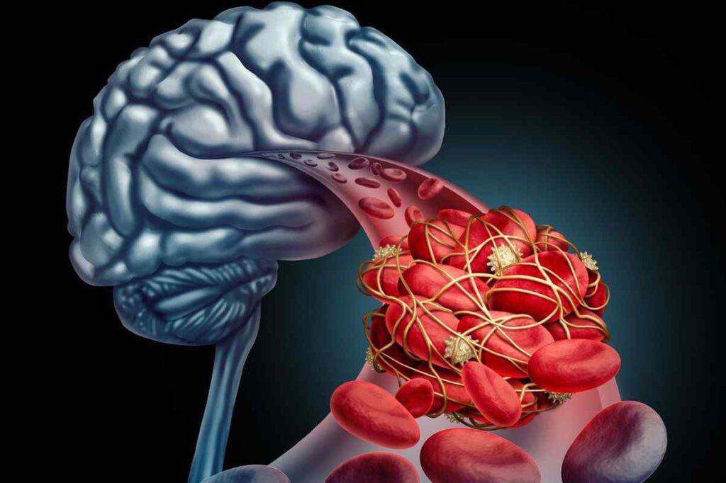 سکته مغزی بعد از عمل قلب باز