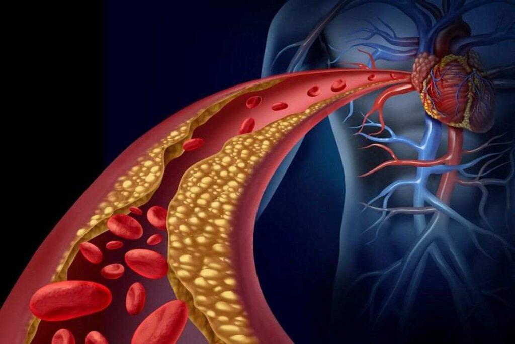 پیشگیری از حمله ی قلبی