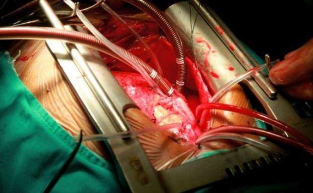 خون ریزی بعد از عمل قلب باز