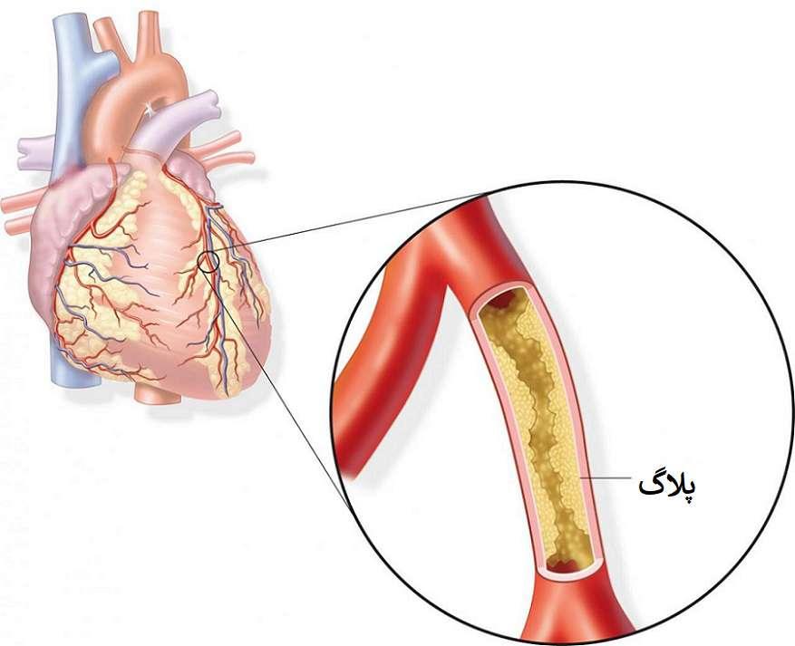 دارهای کاهش کلسترول خون