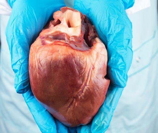 جراحی پیوند قلب