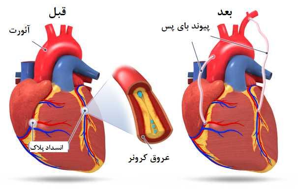 پیوند زدن رگ قلب