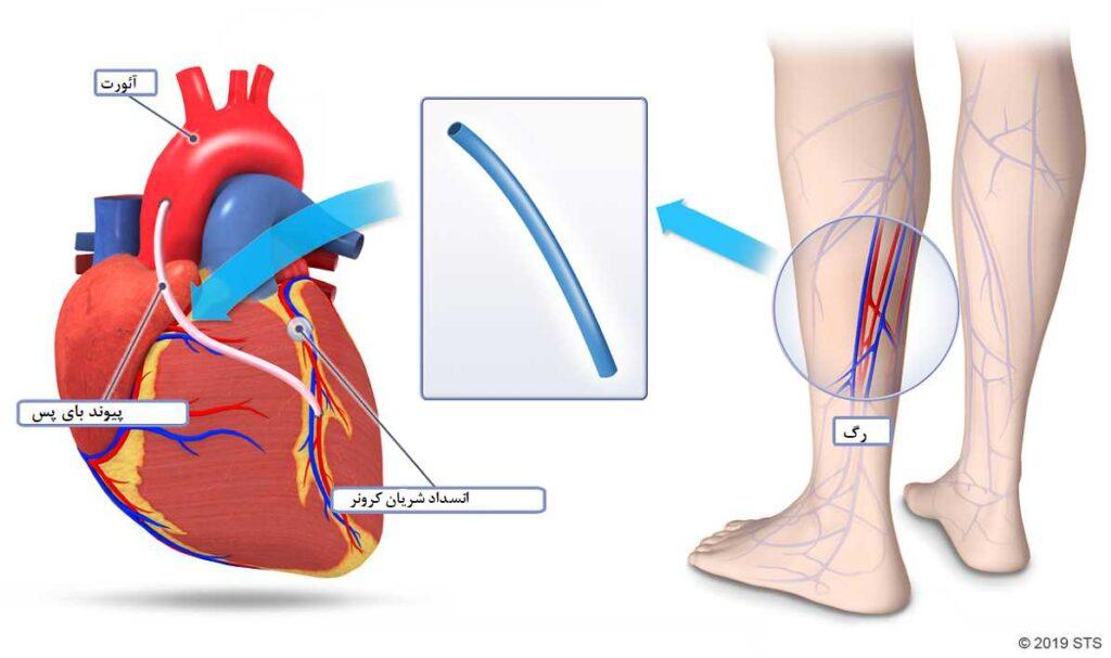 برداشتن رگ از پا برای عمل قلب