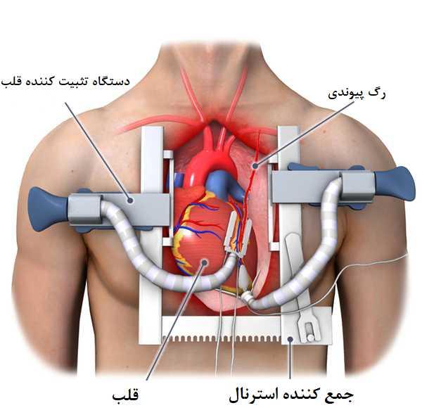 مراحل جراحی بای پس قلب