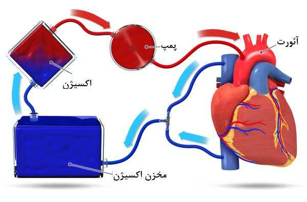 دستگاه بای پس قلبی
