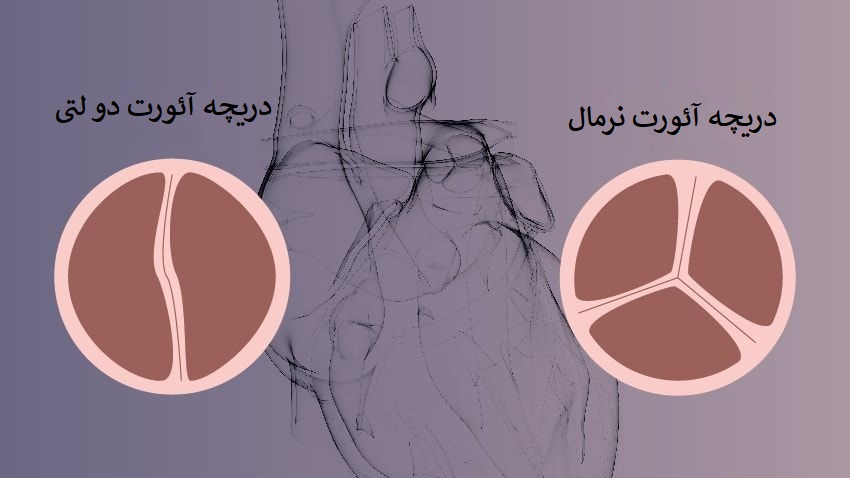 جراحی تعویض دریچه آئورت