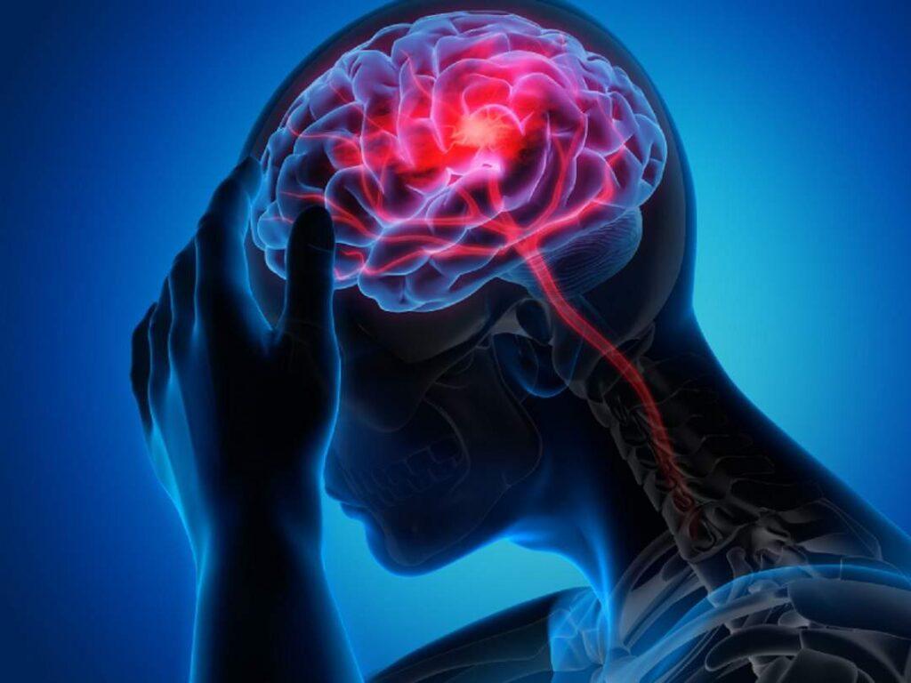 عوارض چربی خون و سکته مغزی