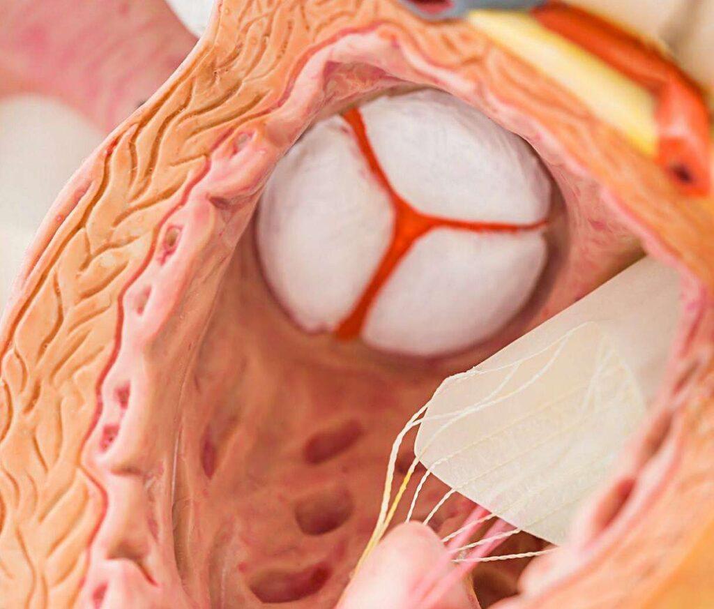 درمان بیماری های دریچه قلب