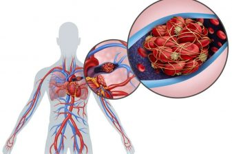 درمان گرفتگی رگ قلب با دارو
