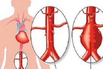abdominal-aortic-aneurysm1