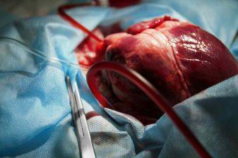 سرفه بعد از عمل قلب باز
