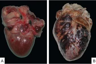 تومور قلبی